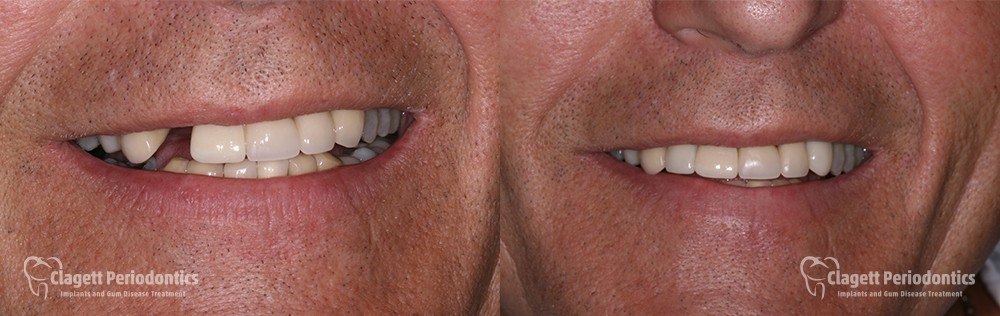 Dental Implants Patient 2 Smile