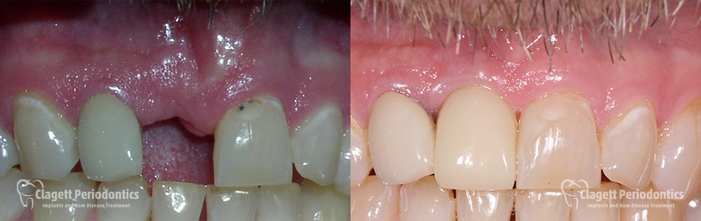 Dental Implants Patient 1 Teeth