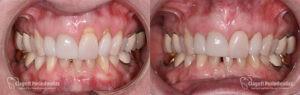 Gum Recession Patient 3 Full