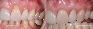 Gum Recession Patient 3 Single