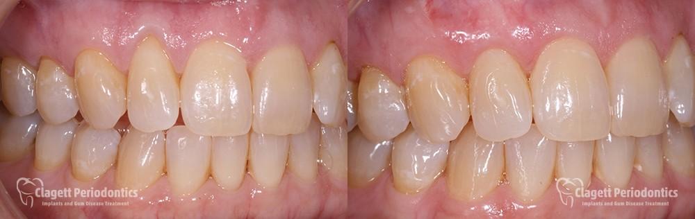 Gum Recession Patient 4 single
